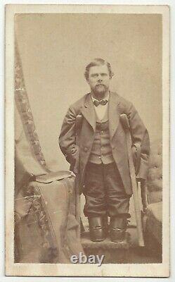 1860's Civil War Soldier CDV Photograph Quadruple Amputee, Dakota Territory