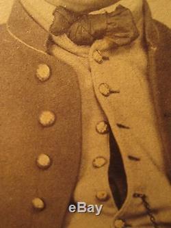 Antique CIVIL War Union Soldier Buttons Kepi #3 Large Rare Photo Last Found Ma