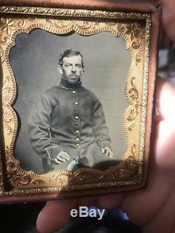 Civil War soldier daguerreotype Tintype 9 button coat military union case